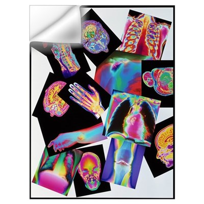 Assortment of coloured X-rays and body scans Wall Decal