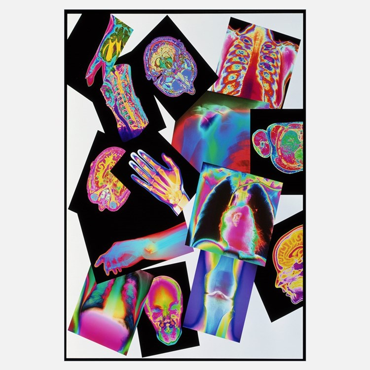 Assortment of coloured X-rays and body scans