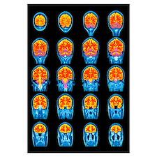Healthy brain, MRI scans