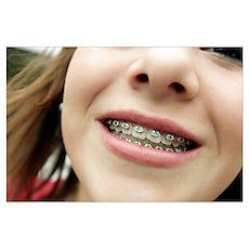 Dental braces Poster