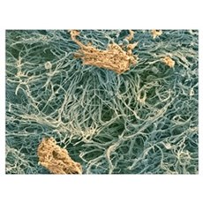Dental plaque, SEM Framed Print