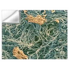 Dental plaque, SEM Wall Decal