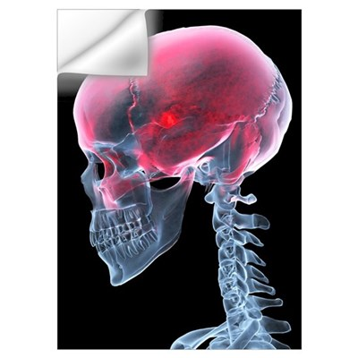 Headache, X-ray artwork Wall Decal