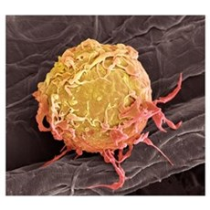 Lymphoma cancer cell, SEM Poster