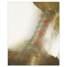 Osteoarthritis of neck, X-ray Poster