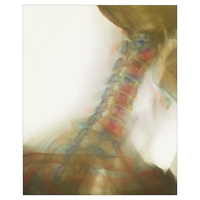 Osteoarthritis of neck, X-ray Poster
