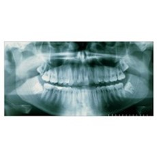 Panoramic dental X-ray of impacted wisdom teeth Framed Print
