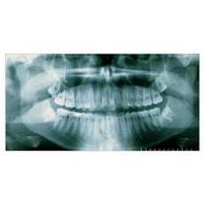 Panoramic dental X-ray of impacted wisdom teeth Poster
