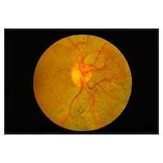 Retina damage in diabetes Poster