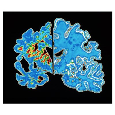 Sectioned brains: Alzheimer's disease vs normal Poster