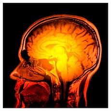 Brain anatomy, MRI scan Poster