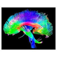 Brain pathways Poster