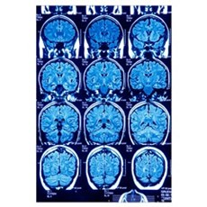 Brain scans, MRI scans Framed Print