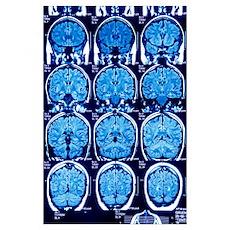 Brain scans, MRI scans Poster