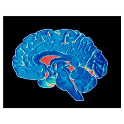 Coloured CT scan of a healthy brain (side view) Poster