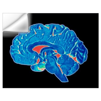 Coloured CT scan of a healthy brain (side view) Wall Decal