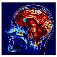 Coloured MRI scan of brain in sagittal se Poster