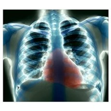 Healthy heart and lungs, X-ray Poster