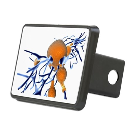 Alzheimer's disease, computer artwork - Hitch Cove