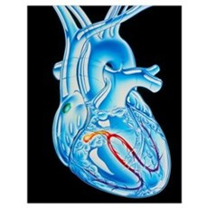 Illustration of electrical conduction in the heart Poster