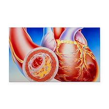 Illustration of cardiac failure due to bl - Car Ma