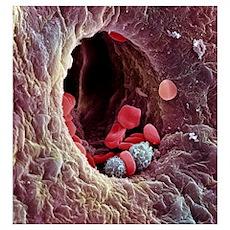 Liver capillary, SEM Poster