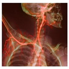 Neck and shoulder arteries, X-ray Poster