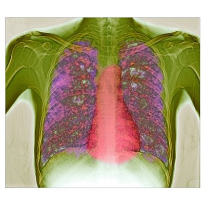 Tuberculosis, X-ray Poster