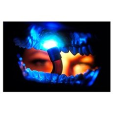 View from inside the mouth of dental crown fitting Poster