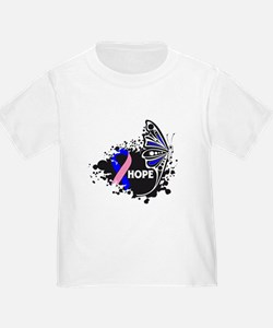Hope Male Breast Cancer T