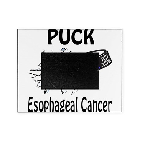 Puck Esophageal Cancer Picture Frame