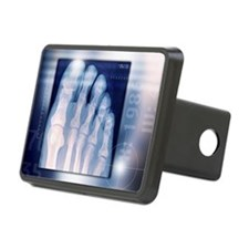 Toes, X-ray - Hitch Cover