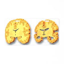 Alzheimer's disease, artwork - Aluminum License Pl