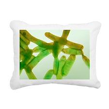 Legionella bacteria, light micrograph - Pillow