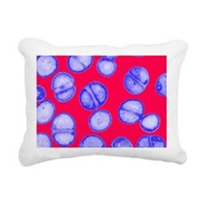 MRSA bacteria - Pillow