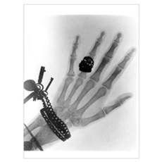Early X-ray photograph of a hand taken in 1896 Framed Print