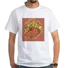 Endocrine cell, TEM - Shirt
