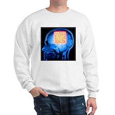 Brain MRI scan with Alzheimer's QR code - Sweatshi