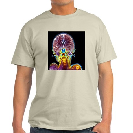 Child's brain, MRI scan - Light T-Shirt