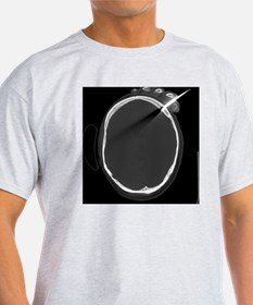 Knife in person's head, X-ray - T-Shirt