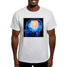 Brain MRI scan with Alzheimer's QR code - T-Shirt