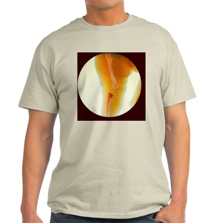 Dislocated knee of baby, X-ray - Light T-Shirt