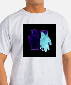 Gloves pre- and post-op, negative image - T-Shirt