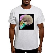 Facial nerves, X-ray - T-Shirt