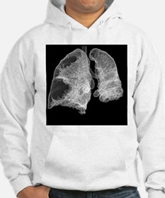 Emphysema of the lungs, CT scan - Hoodie