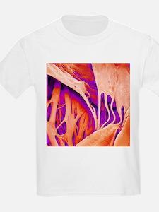 Heart valve and strings, SEM - T-Shirt