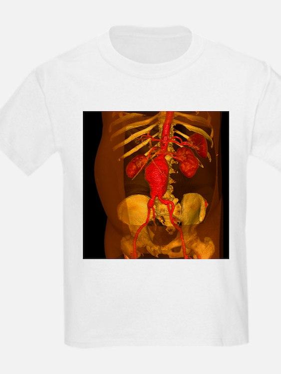 Aortic aneurysm, 3-D CT scan - T-Shirt