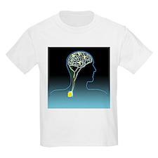 Parkinson's disease treatment, artwork - T-Shirt