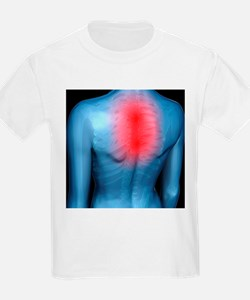 Upper back pain, conceptual artwork - T-Shirt