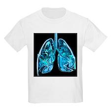 Lungs, artwork - T-Shirt